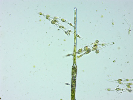 Dinobryon algae